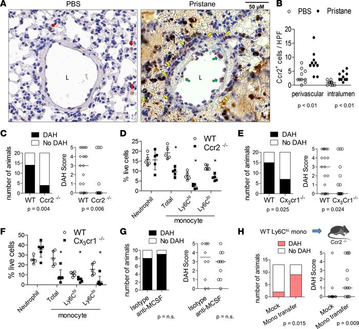 Attenuated DAH in mice deficient in monocyte chemoattractants. (A) Immun...