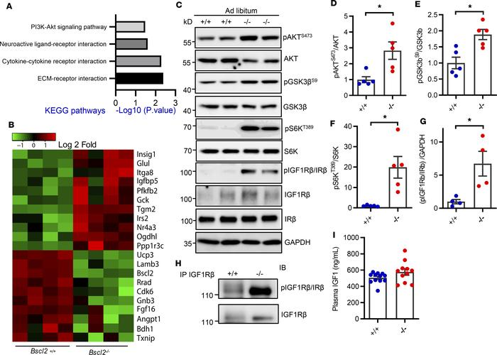 Elevated basal IGF1R-mediated PI3K/AKT signaling in hypertrophic Bscl2–/...