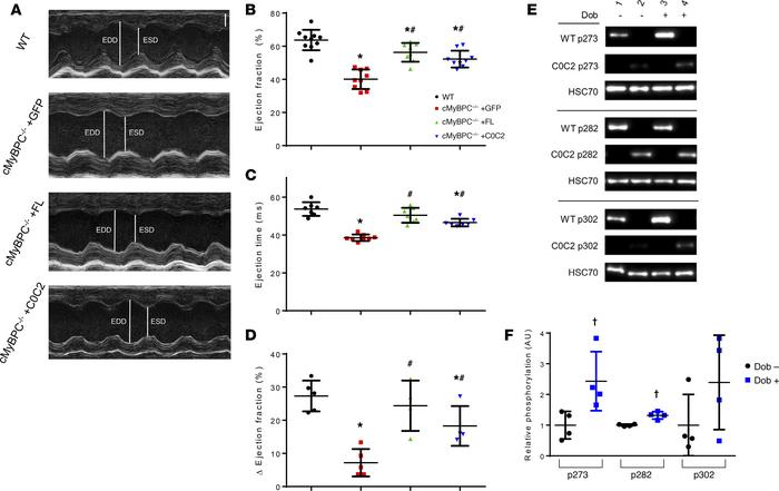 Effects of AAV9-FL and –C0C2 gene transfer on cMyBPC–/– in vivo cardiac ...