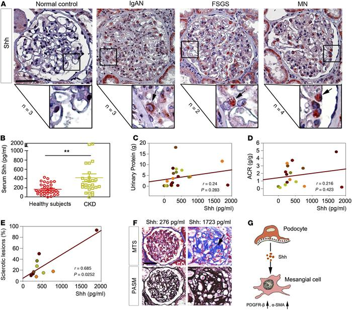 Podocyte-specific induction of Shh is associated with glomerulosclerosis...