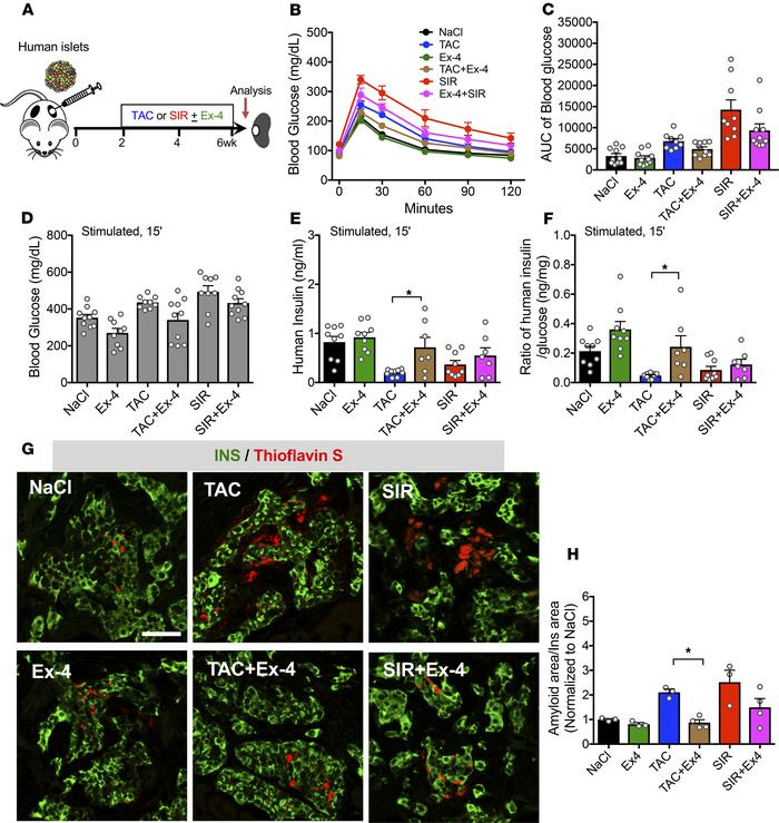 Ex-4 treatment can protect β cells from drug-induced dysfunction. (A) Sc...