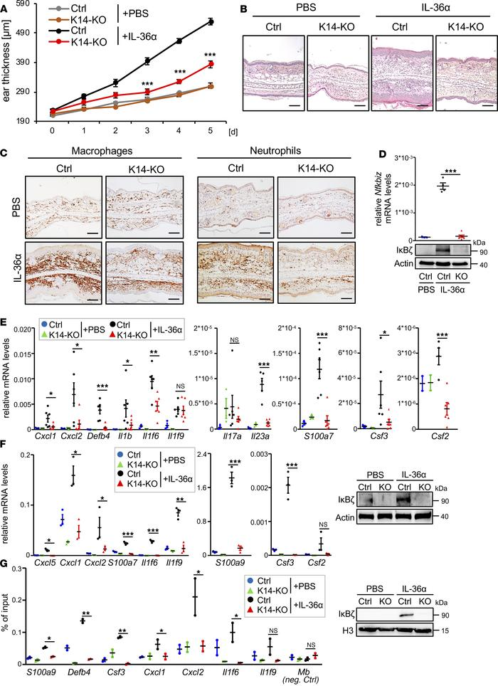 Deletion of IκBζ in keratinocytes protects against IL-36–induced dermati...