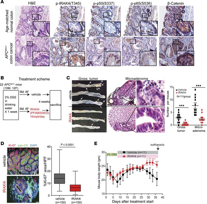 IRAK4 is required for colitis-induced neoplasm in APCMin/+ mice. (A) Rep...
