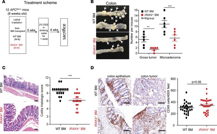 Bone marrow IRAK4 is required for colitis-induced neoplasm in APCMin/+ m...