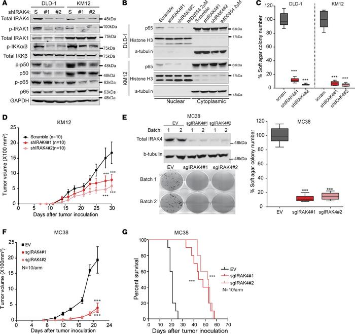 IRAK4 drives NF-κB activity in human and murine CRC cells. (A) Western b...