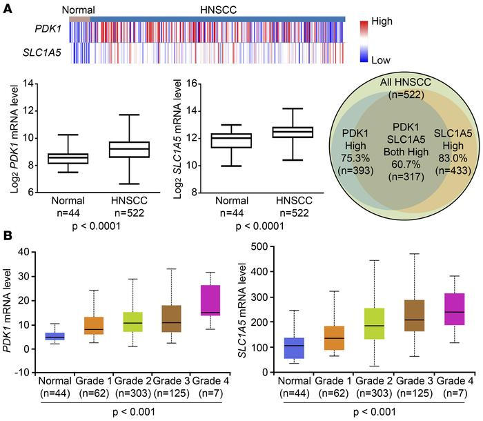 PDK1 and SLC1A5 are both overexpressed in HNSCC tumors, and their mRNA ...