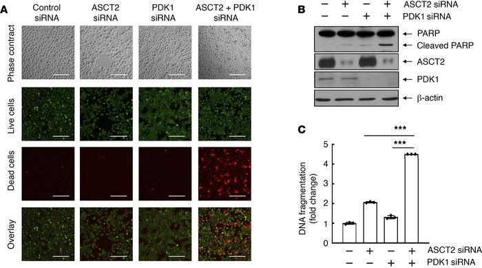 Dual silencing of ASCT2 and PDK1 is synthetically lethal to HNSCC cells....