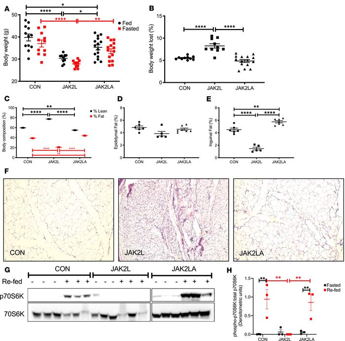 JAK2L mice are lipodystrophic and have a defective fasted-to-fed respons...