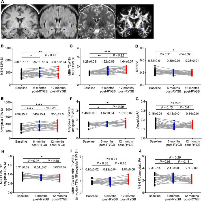 RYGB progressively alters radiologic measures of hypothalamic inflammati...