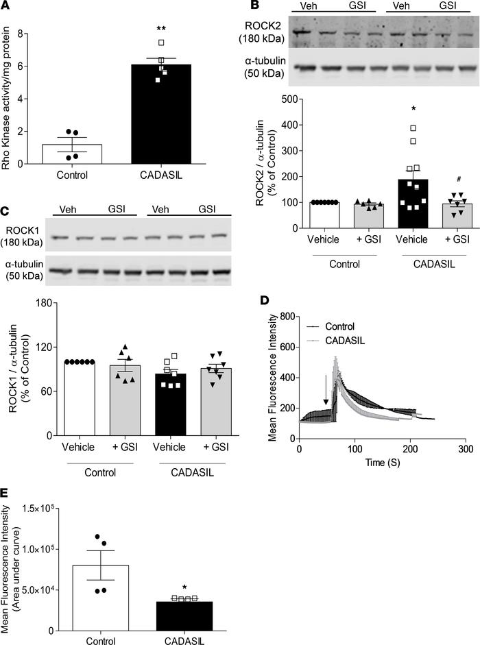 Increased RhoA/Rho kinase activity and blunted [Ca2+]i transients in CAD...