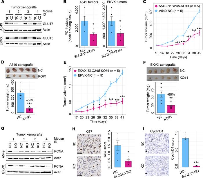 Blockade of in vivo fructose utilization via deleting SLC2A5 hinders the...