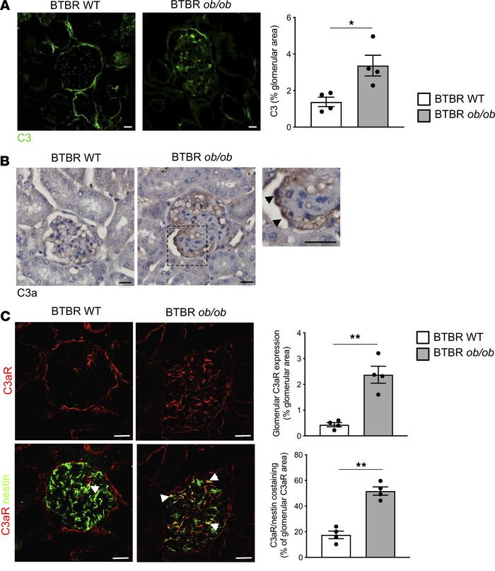 Glomerular complement activation in mice with type 2 DN. Representative ...