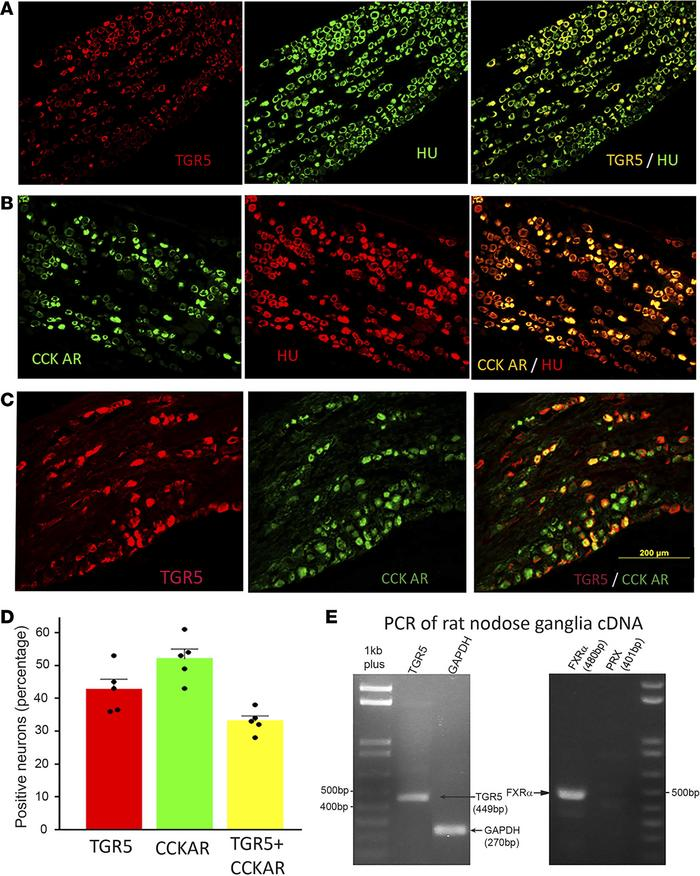 TGR5 and CCK-ARs are coexpressed in rodent NG neurons. (A) Double immuno...