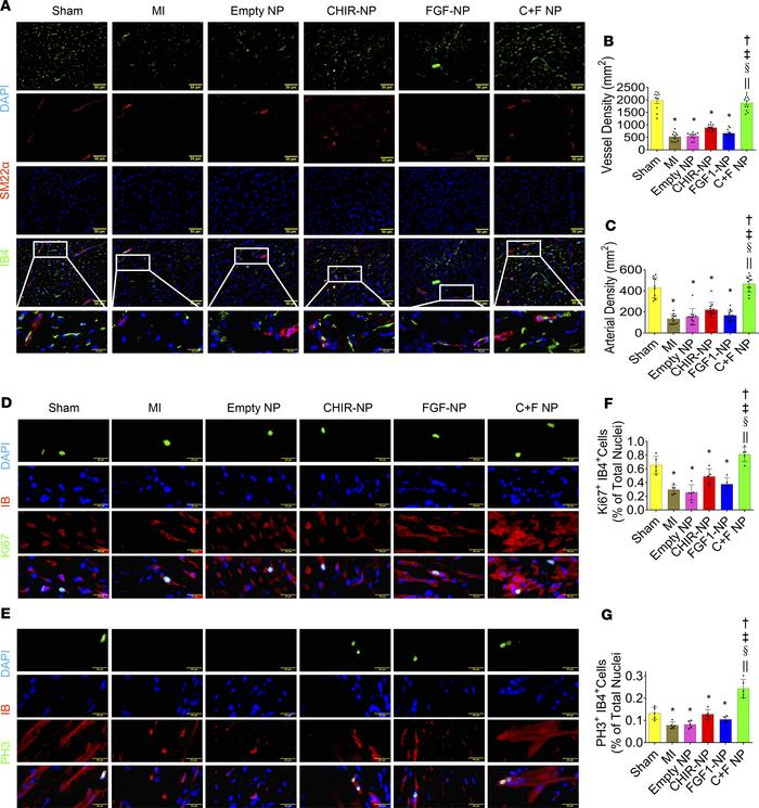Evaluation of NPs mediated neo-angiogenesis in the mouse model of MI. (A...