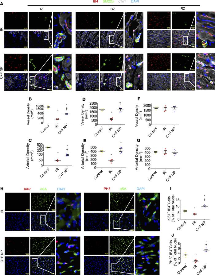 Evaluation of NP-mediated neo-angiogenesis in the pig model of IR injury...