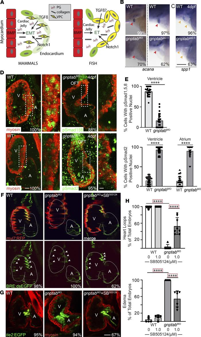 Disruptions in BMP and TGF-β signaling are associated with MLII heart an...