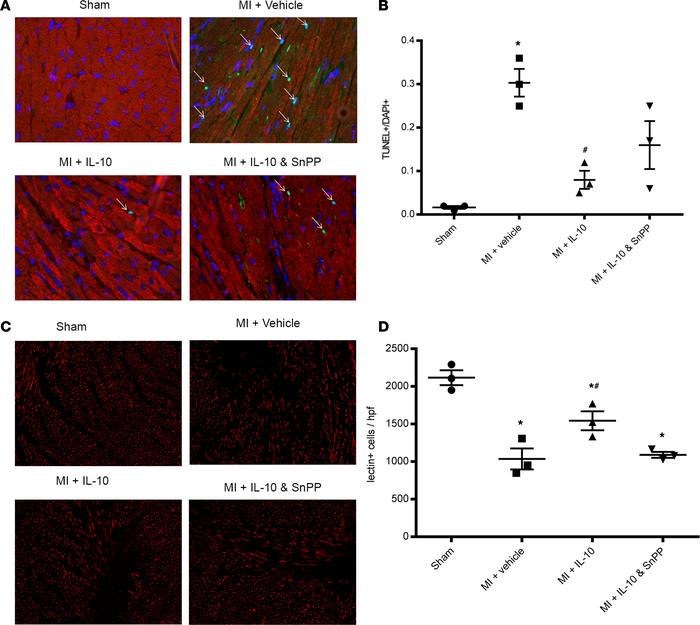IL-10 reduced cardiomyocyte apoptosis and increased capillary density in...