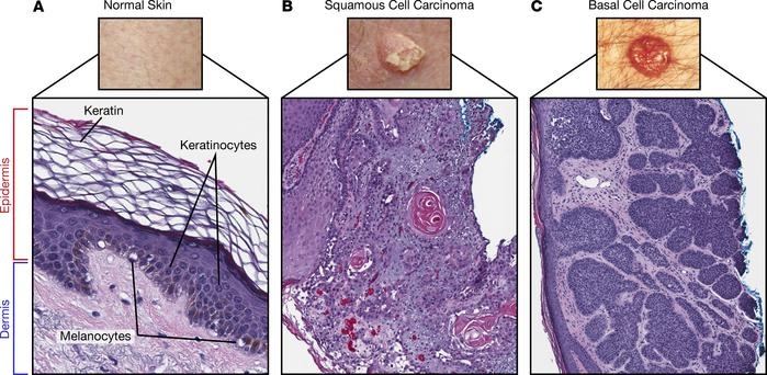 Normal skin structure and keratinocyte carcinomas. (A) Normal skin archi...
