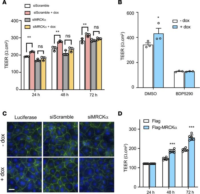MRCKα is required for the β1 subunit–mediated alveolar barrier tightenin...