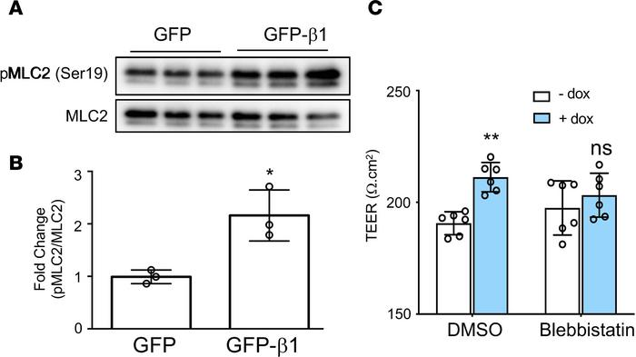 The MRCKα downstream pathway is activated upon overexpression of the β1 ...