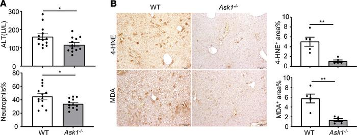 Deletion of ASK1 ameliorates chronic-plus-binge ethanol–induced liver in...