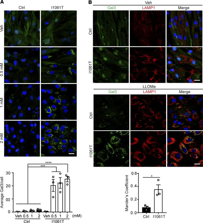 I1061T NPC1 human fibroblasts are more sensitive to lysosomal damage. (A...