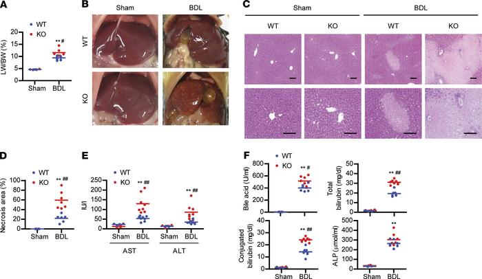 Aggravation of BDL-induced liver injury by Sirt6 deficiency. (A and B) L...