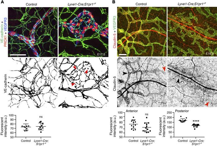 S1PR1 regulates claudin-5 expression in the developing lymphatic vessels...
