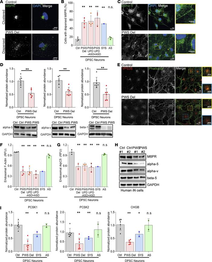 DPSC-derived neurons from PWS patients have impaired endosome-mediated p...