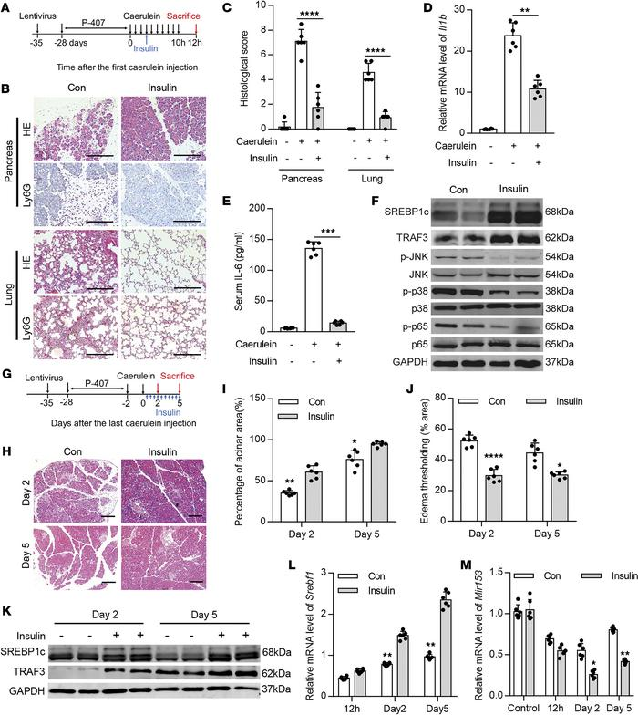 Insulin protects against HTG-AP partially via restoring SREBP1c/miR-153 ...