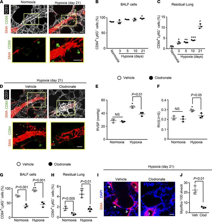 Lung macrophages accumulate with hypoxia and are critical for hypoxia-in...