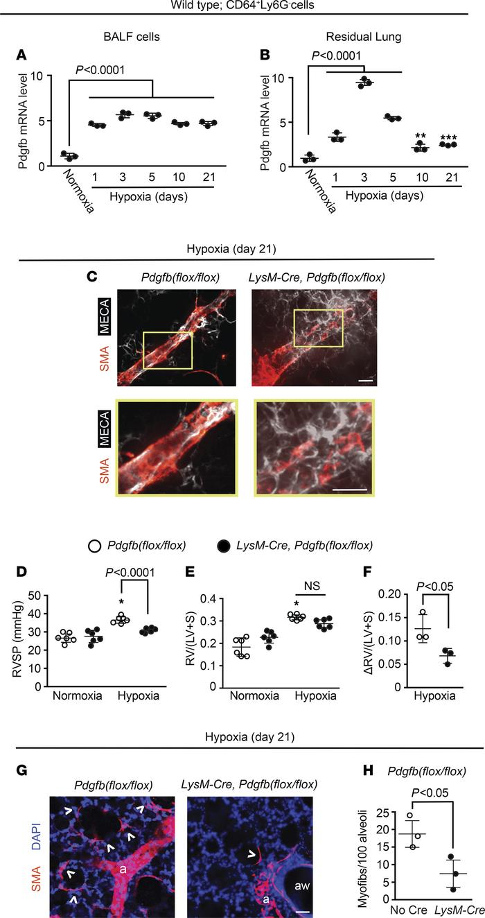 Lung macrophage Pdgfb levels increase with hypoxia, and Pdgfb deletion i...