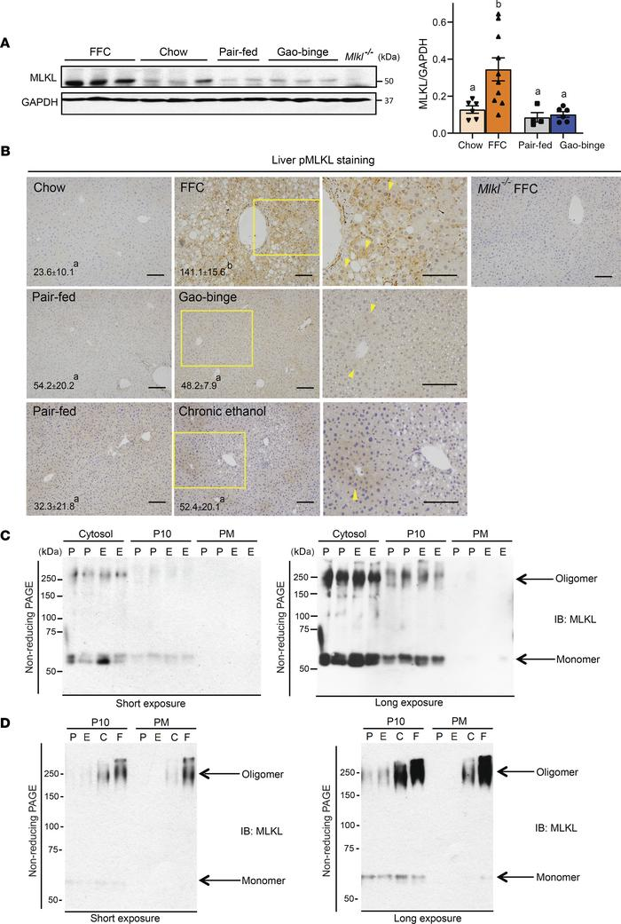 Differential expression and activation of hepatic MLKL in mice exposed t...