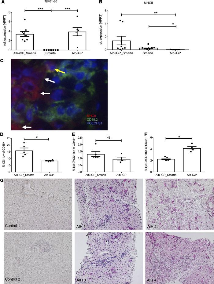 DCs as pathogenic drivers in Alb-iGP_Smarta mice and human AIH. Hepatoce...