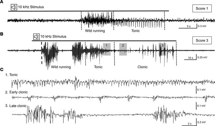 Cortical EEG patterns confirm tonic-clonic audiogenic seizures in SSKcnj...
