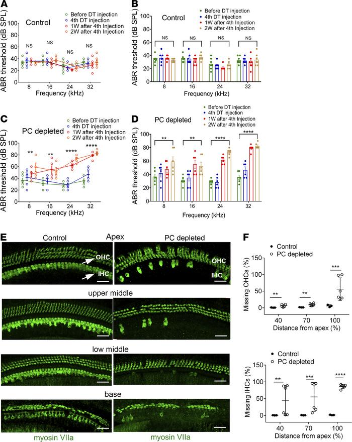 Loss of pericytes causes hearing loss. (A and B) Control iDTR mice recei...
