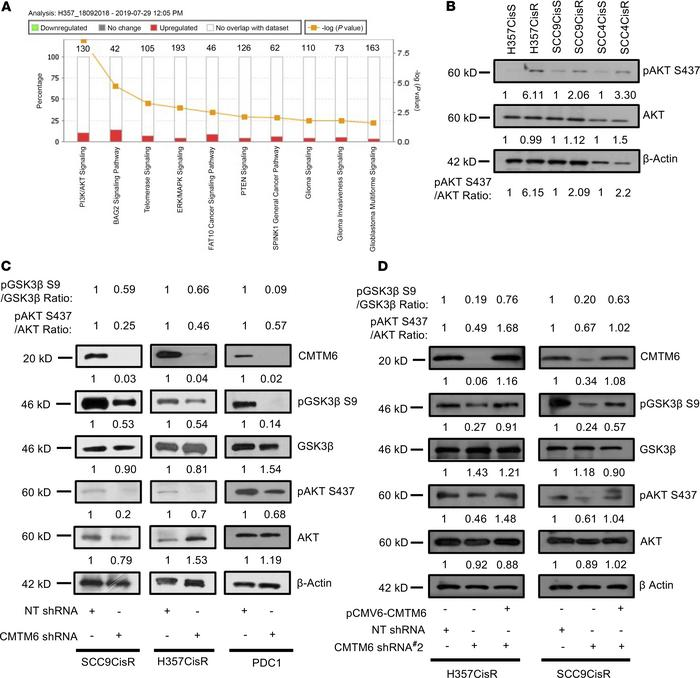 CMTM6 activates AKT/GSK3β signaling. (A) Deregulated genes from proteomi...