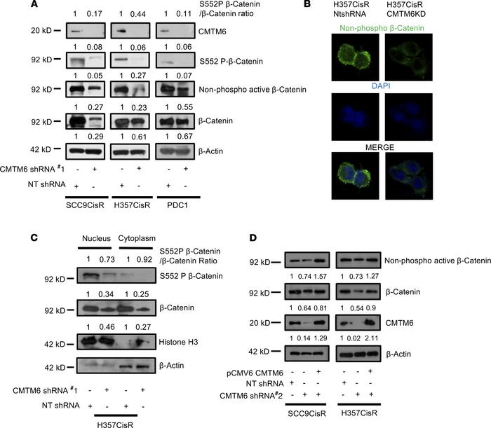 CMTM6 regulates β-catenin expression in chemoresistant OSCC. (A) The lys...