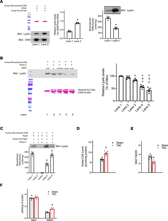 Acetylation reduced enzymatic activity of human CKM. (A) Representative ...