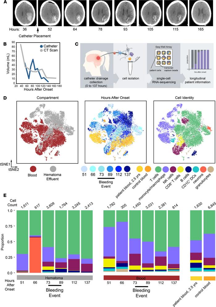 Single-cell RNA-Seq on cells isolated from hematoma effluent and periphe...