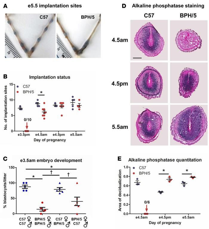 BPH/5 female mice exhibit dysregulated peri-implantation events. (A) Rep...