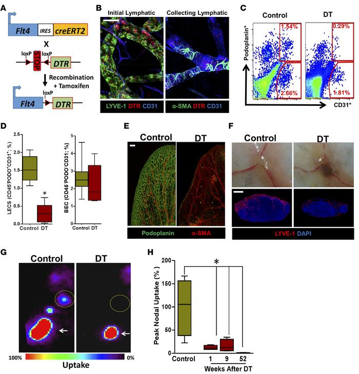 FLT4-Cre-DTR enables selective ablation of capillary and collecting lymp...