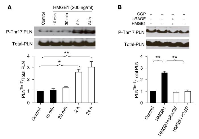 RAGE stimulation with HMGB1 activates CaMKII in a β1AR-dependent manner....