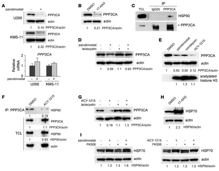 PPP3CA protein is degraded by HDAC (histone deacetylase) inhibitors in M...