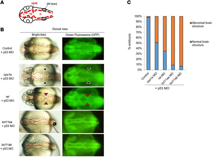 Brain structural anomalies in affected zebrafish embryos. (A) Representa...