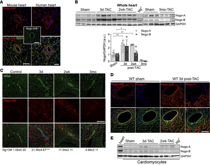 Transient and cell-type–specific overexpression of Nogo-A and Nogo-B in ...