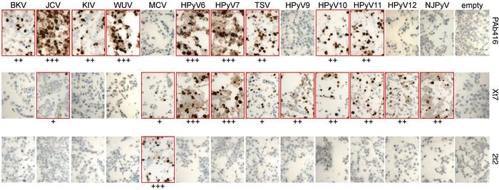 Immunohistochemical characterization of HEK293 cells expressing HPyV ear...