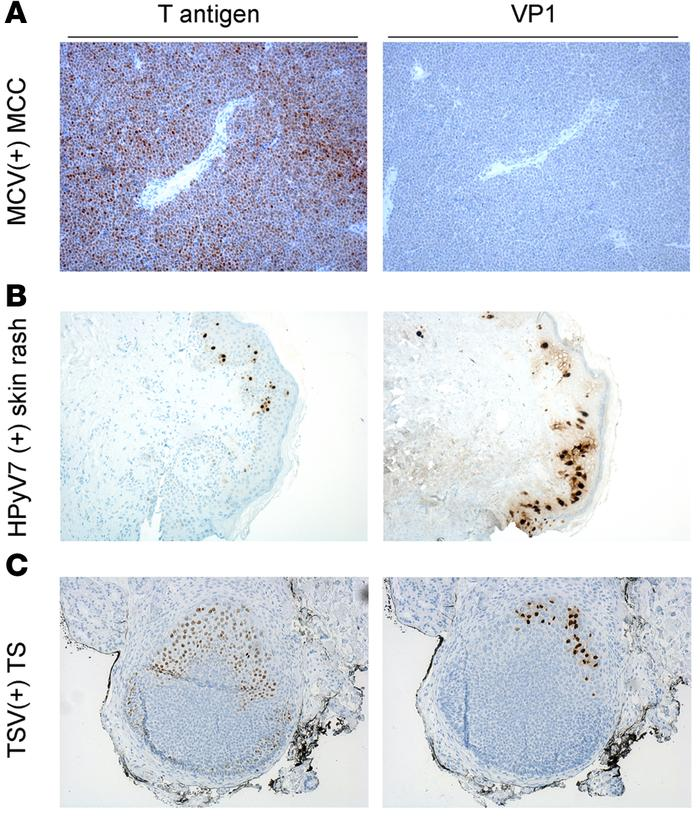 Comparison of T antigen and VP1 immunostaining of known human polyomavir...