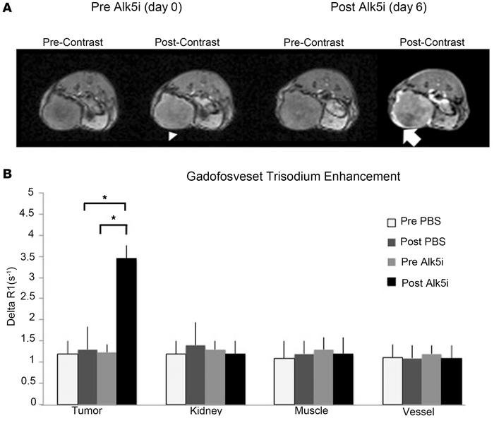 Alk5 inhibition leads to increased gadofosveset trisodium accumulation a...