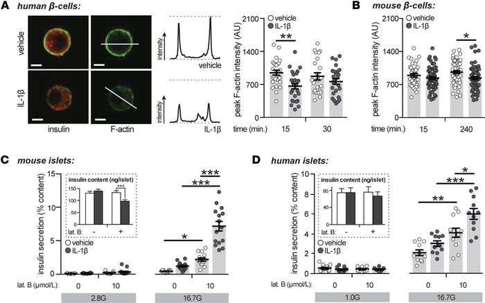 Acute treatment with IL-1β induces filamentous-actin depolymerization. (...